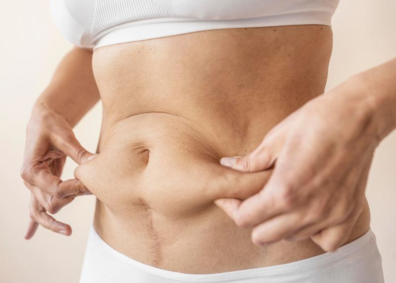 Nguyên nhân khiến mọi người béo bụng, mỡ bụng